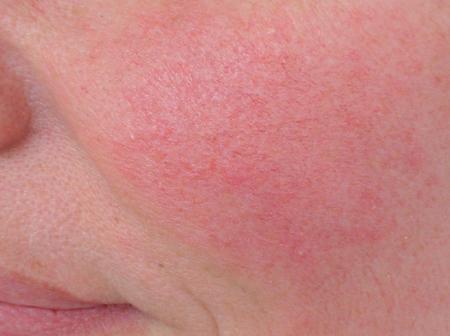 الوردية مرض جلدي علاج طبيعي